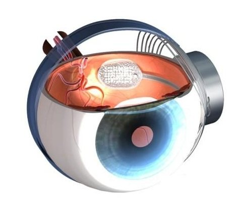 Argus II, el ojo biónico de Second Sight