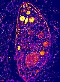 Toxoplasmosis cambia el comportamiento humano.