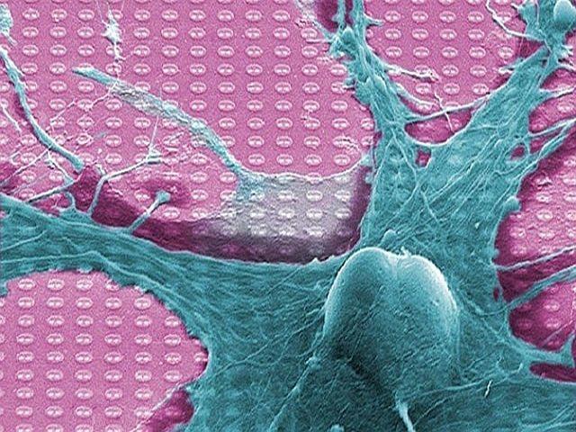 Neuristor: ¿El futuro de las Prótesis y la Robótica?
