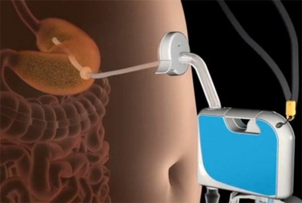 AspireAssist se conecta al estómago y succiona la comida (vídeo)