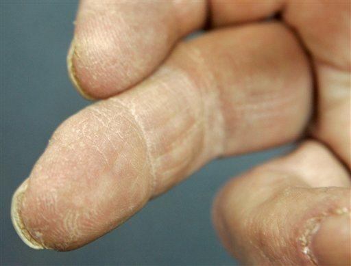 Grandes avances en medicina regenerativa