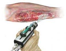 Medicina regenerativa: Aerosol curativo
