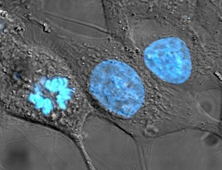 HeLa: Las primeras células humanas inmortales