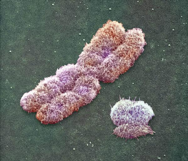 El cromosoma Y está desapareciendo