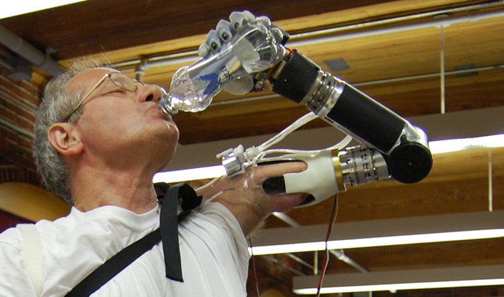 El brazo prostético de DEKA